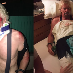 66-Year-Old Daredevil Richard Branson Crashes Bike And Breaks His Face