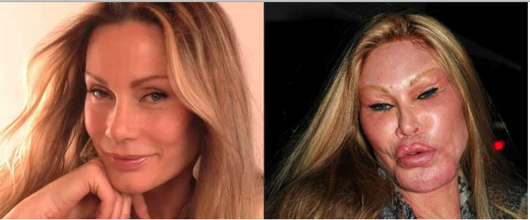 Jocelyn Wildenstein Before and After Plastic Surgeries